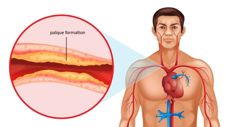 atherosclerosis - cholesterol plaque formation